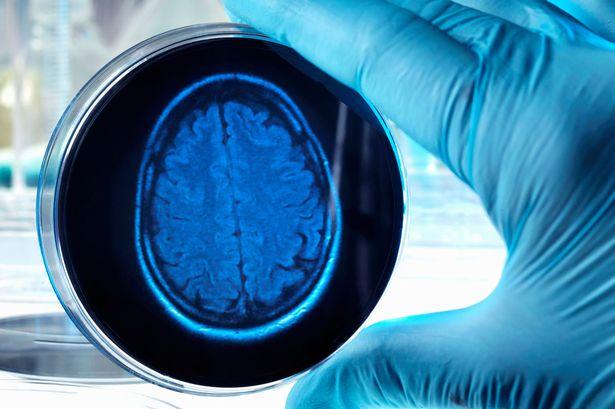 Cura Alzheimer: la ricerca fa un altro passo avanti