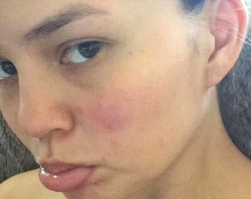 Chrissy Teigen senza makeup su Instagram