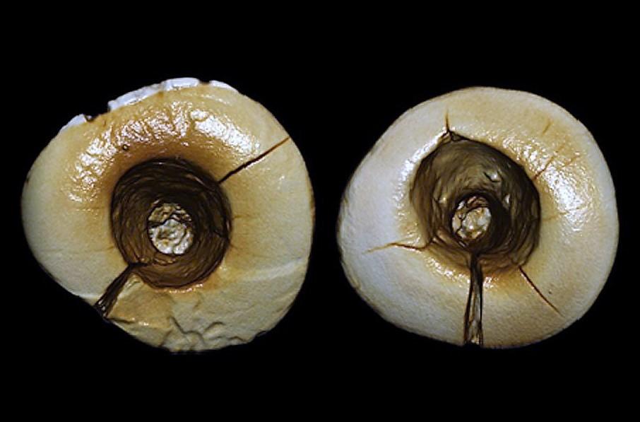 Una grande scoperta. L'otturazione più antica ha 13.000 anni, ed è opera di un garfagnino